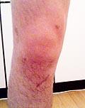脱ぐといってもこれが限界(高橋談)小さな傷は手術の痕。保険はまだ降りていないとか